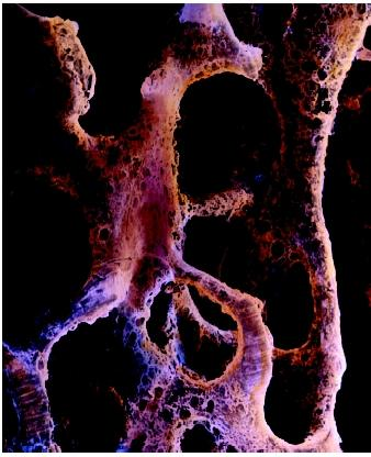 A false-color scanning electron micrograph of cancellous bone tissue affected by osteoporosis.