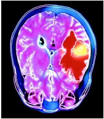 A colored magnetic resonance imaging (MRI) scan of the axial section of the human brain showing a metastatic tumor (yellow).