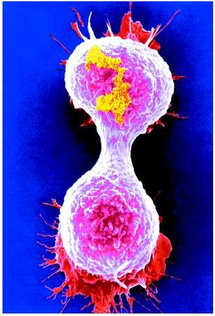 A colored scanning electron micrograph of a breast cancer cell dividing.