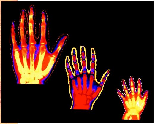 Computer color-enhanced X ray depicting the hand development of a two, six, and nineteen year old male.