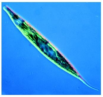 A photomicrograph of the protozoa Euglena.