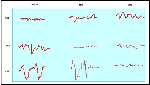 Figure 2. Electroencephalogram (EEG), electromyogram (EMG), and electrooculogram (EOG) show activity of the brain, muscles, and eyes during three different states: wakefulness, REM sleep, and slow-wave sleep (SWS).